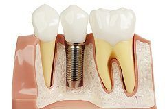 Dental Implants Are Truly a Win-Win For Dental Patients