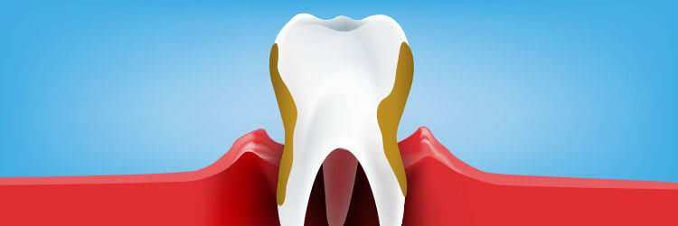 Knowing The Stages of Periodontitis
