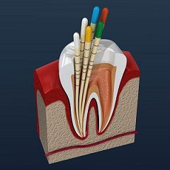 Root Canal Therapy and What It Means To You