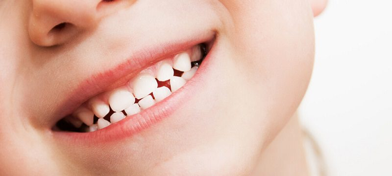 Dental Fluoride and the Effects on Oral Health