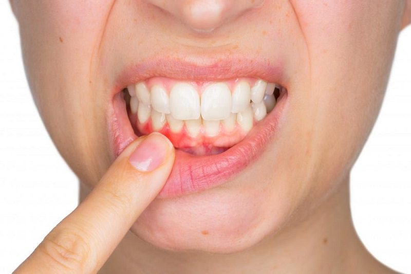 Periodontal Disease and How It Effects Overall Health