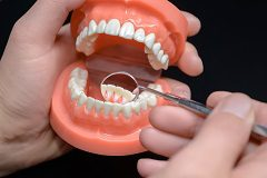 Excellent Solution for Replacing Missing Teeth