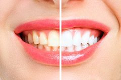 Stains That Originate from Within the Tooth